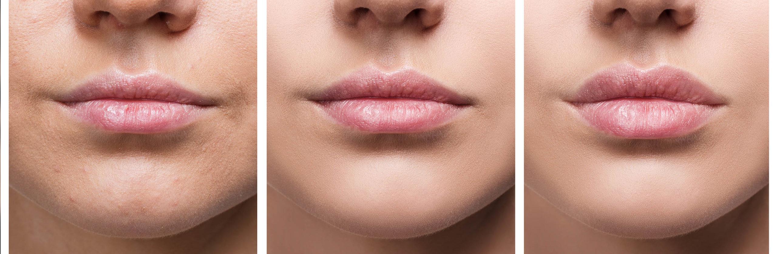 Header_Lippenvolumenaufbau