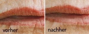 Lippenfältchen reduzieren