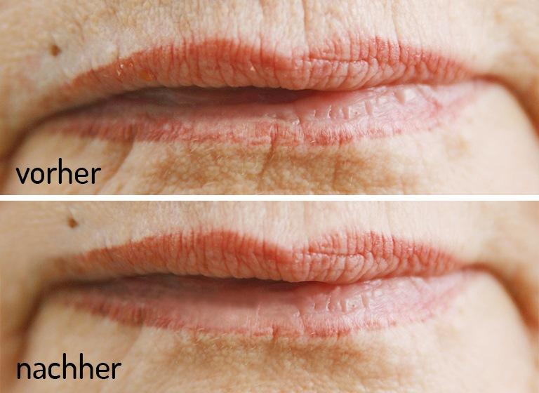 Lippenfältchen